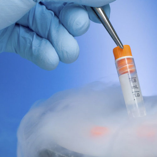 Egg freezing: Making babies in the modern world